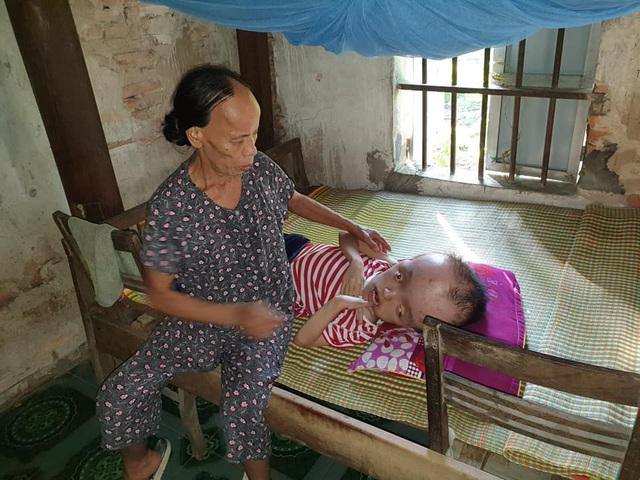 Người đàn bà bệnh tật 30 năm chật vật nuôi chồng, con bị bệnh não úng thủy - Ảnh 3.