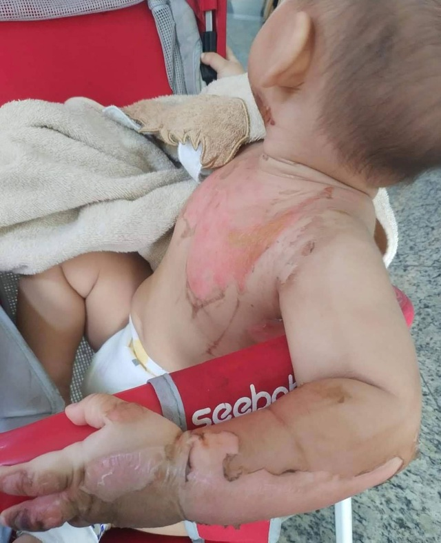 Bé 2 tuổi bị bỏng nước sôi pha mì tôm khi đùa cùng anh trai - Ảnh 1.