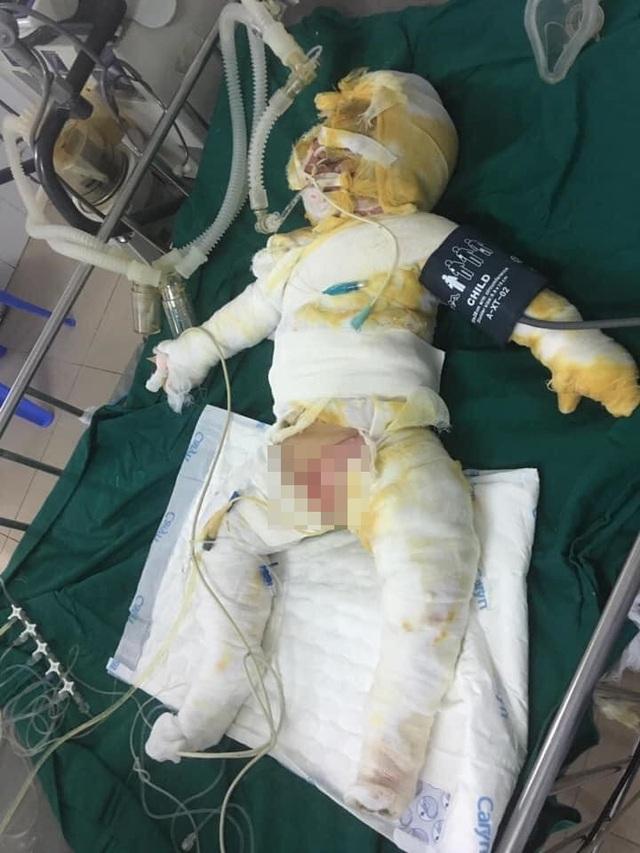 Chồng mất, 3 mẹ con bị bỏng nặng sau vụ cháy điều hòa đang rất cần sự giúp đỡ  - Ảnh 3.