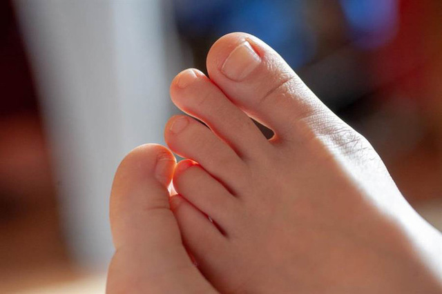 Bàn chân của người nhiều bệnh tật, tuổi thọ kém luôn có chung 7 dấu hiệu nhỏ này: Cả đàn ông lẫn phụ nữ đều nên kiểm tra ngay - Ảnh 3.