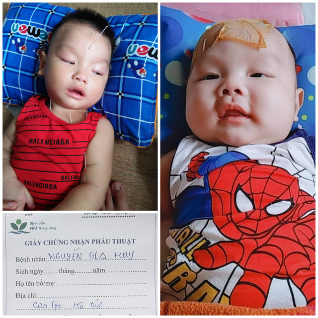 Đôi vợ chồng nghèo ở Hà Tĩnh cầu xin sự sống cho con trai bị não úng thủy - Ảnh 4.