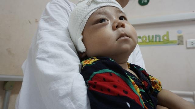 Xót thương bé trai dân tộc Nùng 7 tháng tuổi bị khối u đẩy lồi mắt ra ngoài - Ảnh 5.