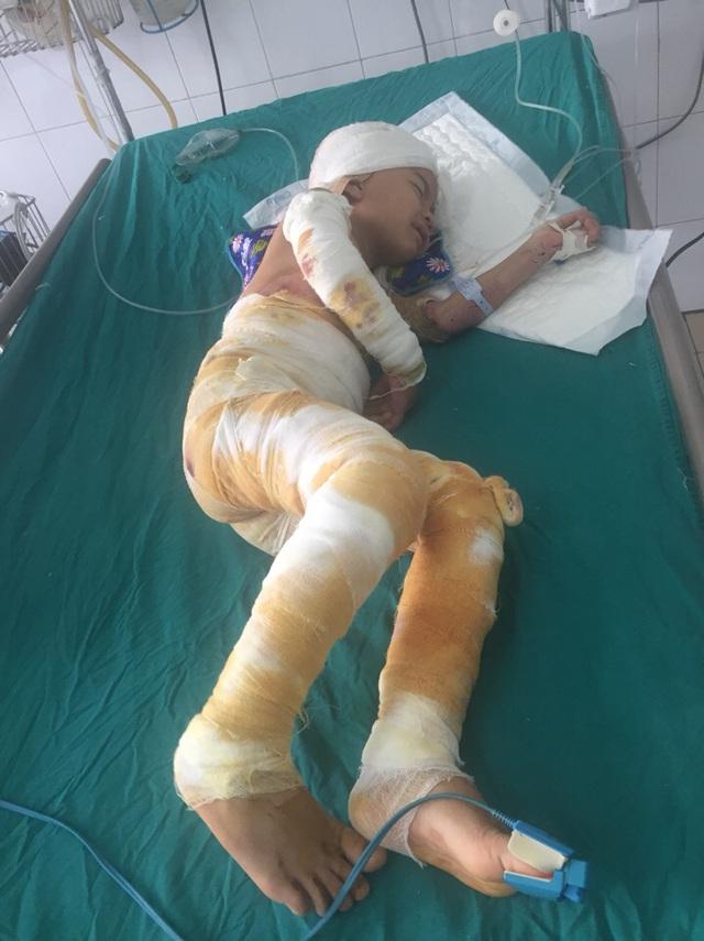Hai người còn sống trong vụ cả nhà bỏng nặng do cháy điều hòa ở Hà Tĩnh đã có tiến triển tốt - Ảnh 5.