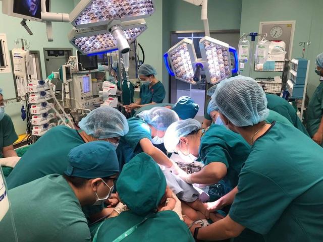 Ca đại phẫu thuật tách cặp song sinh: Tỷ lệ cứu sống là 74% - Ảnh 3.