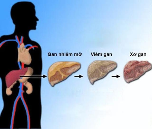 Hai căn bệnh cực kỳ phổ biến và rất dễ phát triển thành ung thư, bạn cần ngăn chặn ngay từ bây giờ - Ảnh 2.