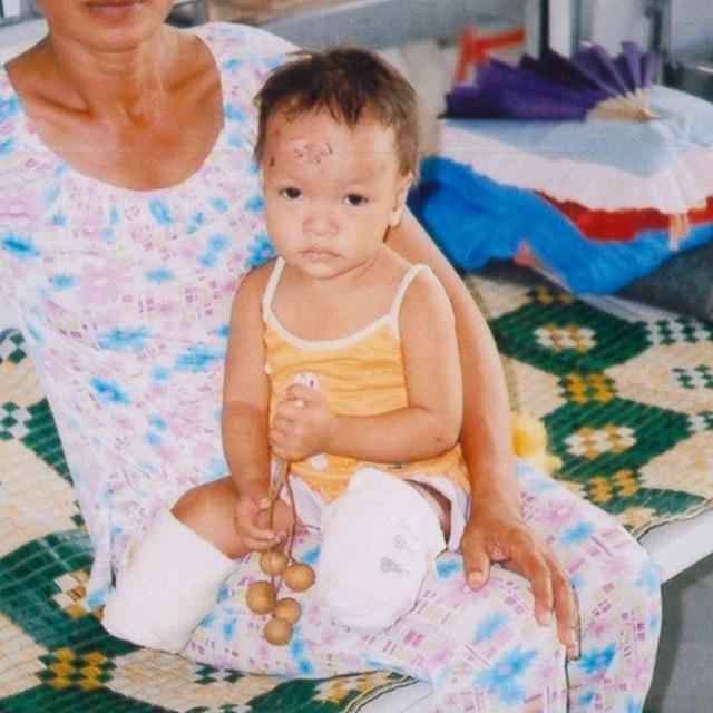 Cô gái gốc Việt mất 2 chân vì nổ bom, thành VĐV bơi lội ở Mỹ - Ảnh 3.