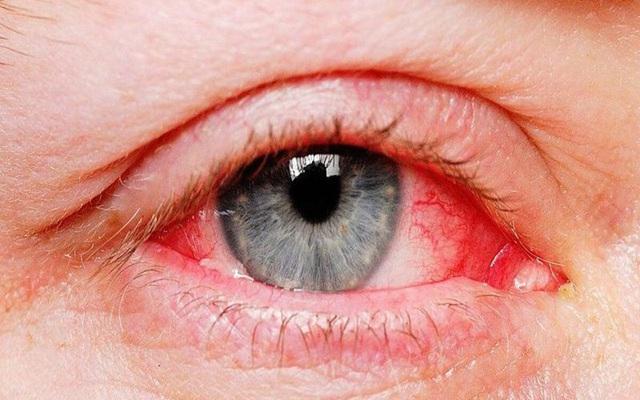 Những bộ phận có thể bị tấn công bởi virus corona - Ảnh 1.