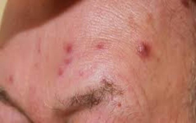 7 căn bệnh nguy hiểm bắt đầu bằng các cơn ho - Ảnh 3.