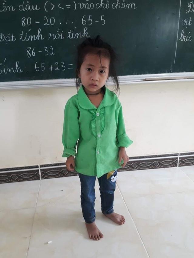 Xót xa trước bé gái 6 tuổi chỉ cao 79cm, nặng 7kg ở cao nguyên đá Hà Giang - Ảnh 2.