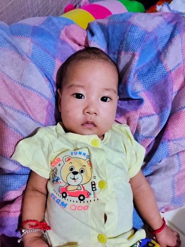 Bé trai bị teo thực quản đã được phẫu thuật, sức khỏe tốt lên  - Ảnh 2.