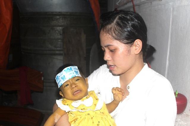 Tiếng khóc xé lòng của bé gái 8 tháng tuổi mang 2 căn bệnh quái ác và nỗi đau tột cùng của đôi vợ chồng nghèo - Ảnh 9.