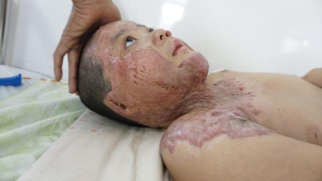 Sẹo co kéo khiến cậu bé bị bỏng xăng không thể quay nổi đầu - Ảnh 2.