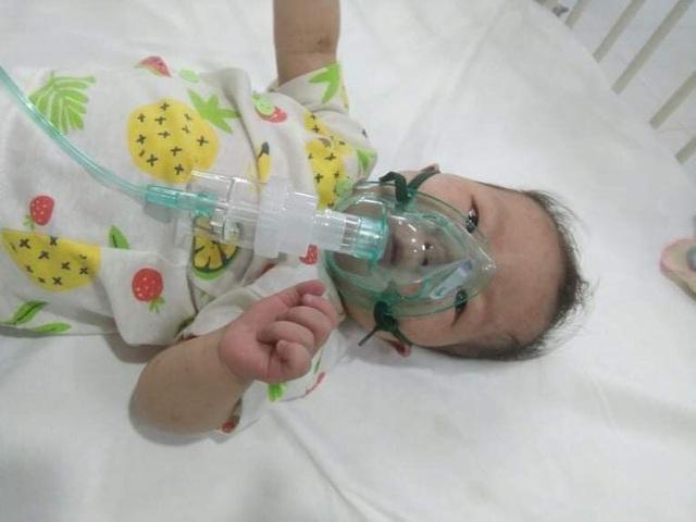 Xót xa bé 11 tháng tuổi thân hình yếu ớt cần tiền phẫu thuật tim gấp - Ảnh 2.