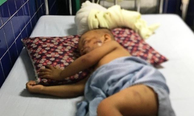Chó becgie 38kg tuột xích tấn công bé trai 2 tuổi nhập viện - Ảnh 1.