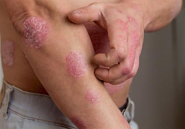 Chuyên gia da liễu tiết lộ 3 bệnh về da thường gặp vào mùa đông, muốn phòng tránh phải làm đủ 10 điều quan trọng - Ảnh 4.