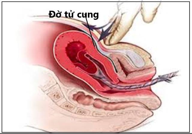 Cứu sống sản phụ bị đờ tử cung nguy hiểm tính mạng sau sinh thường - Ảnh 1.