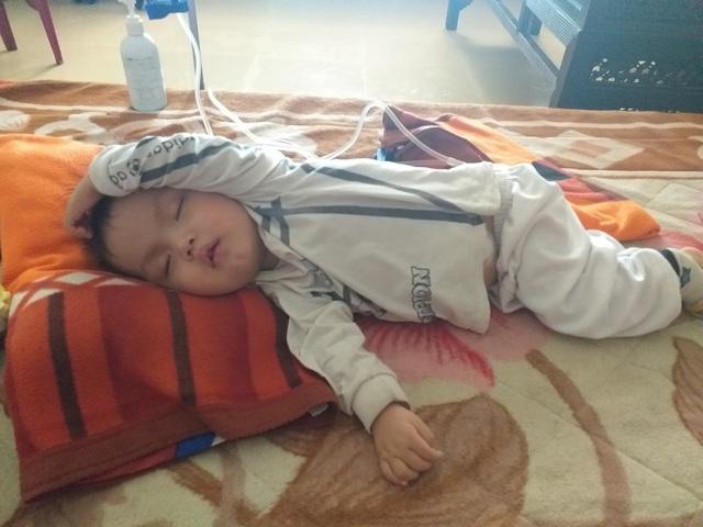 Sự sống mong manh của bé trai 17 tháng bị bệnh tim, thận cần sự hỗ trợ - Ảnh 3.
