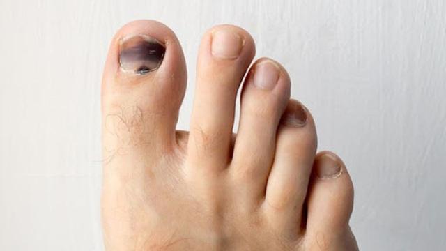 Có dấu hiệu này xuất hiện ở bàn chân thì đi khám ngay, đừng để lâu mà hối không kịp - Ảnh 1.