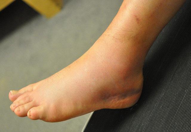 Có dấu hiệu này xuất hiện ở bàn chân thì đi khám ngay, đừng để lâu mà hối không kịp - Ảnh 7.