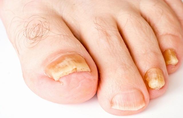 Có dấu hiệu này xuất hiện ở bàn chân thì đi khám ngay, đừng để lâu mà hối không kịp - Ảnh 8.