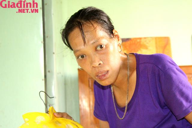 Nỗi đau và mong ước cháy bỏng người mẹ nghèo khuyết tật bị bệnh tật bủa vây nuôi con gái thiểu năng   - Ảnh 10.