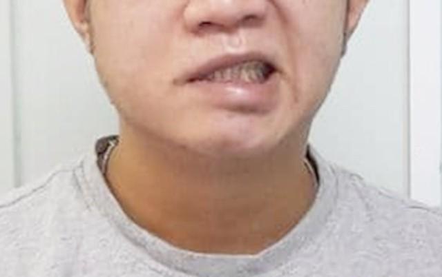 Thói quen không tốt trước khi ngủ khiến khuôn mặt biến dạng - Ảnh 1.