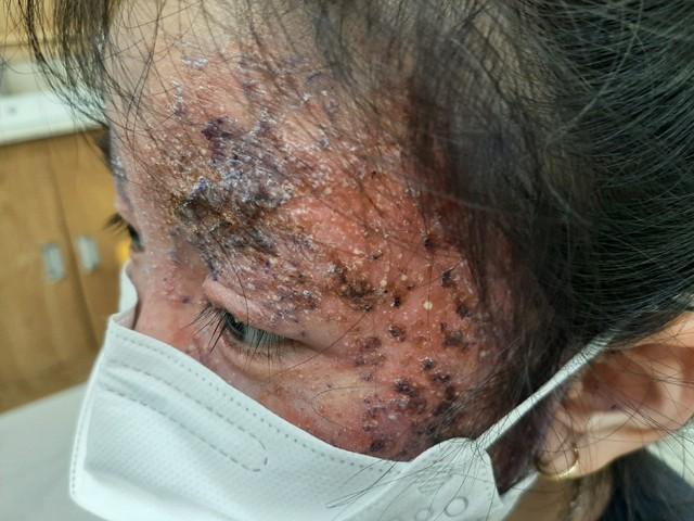 Bôi thuốc trị nấm da sai cách, mặt bé gái 8 tuổi bị mưng mủ, tổn thương dữ dội - Ảnh 1.