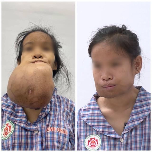 Khổ sở với khối u khủng, suốt nhiều năm cô gái trẻ phải dùng khăn che kín mặt - Ảnh 3.