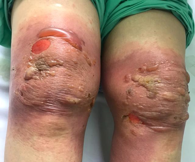 Người phụ nữ bị bỏng nặng ở gối sau khi đắp thuốc nam - Ảnh 1.