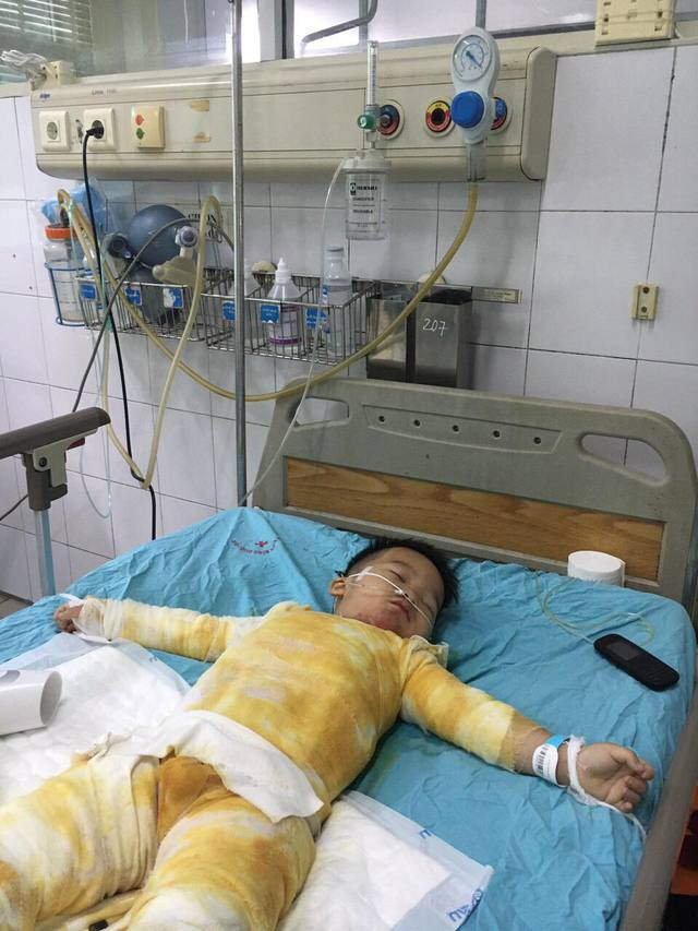 Ngã vào nồi canh, bé trai 3 tuổi bị bỏng nặng nguy kịch khi gia đình khó khăn - Ảnh 2.