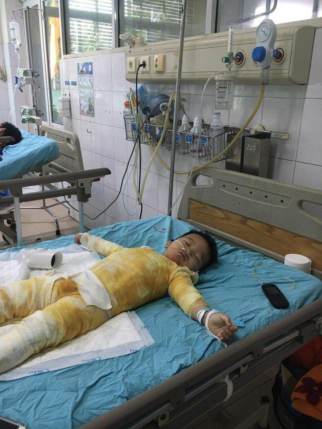 Ngã vào nồi canh, bé trai 3 tuổi bị bỏng nặng nguy kịch khi gia đình khó khăn - Ảnh 3.