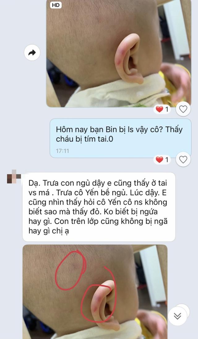 Hà Nội: Bé trai 2 tuổi phải nhập viện cấp cứu, bị xuất huyết não khi đang học tại trường mầm non thực nghiệm Việt Anh - Ảnh 4.