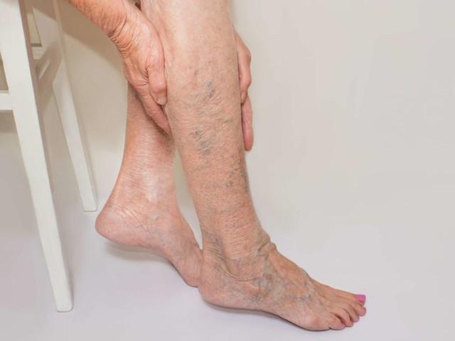 6 biện pháp khắc phục suy giãn tĩnh mạch chân tại nhà - Ảnh 1.