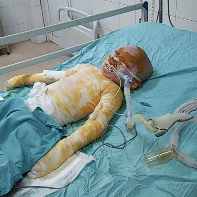 Cơ thể biến dạng, mặt loang lổ do bỏng cồn, bé gái 5 tuổi khẩn thiết cần sự giúp đỡ - Ảnh 3.
