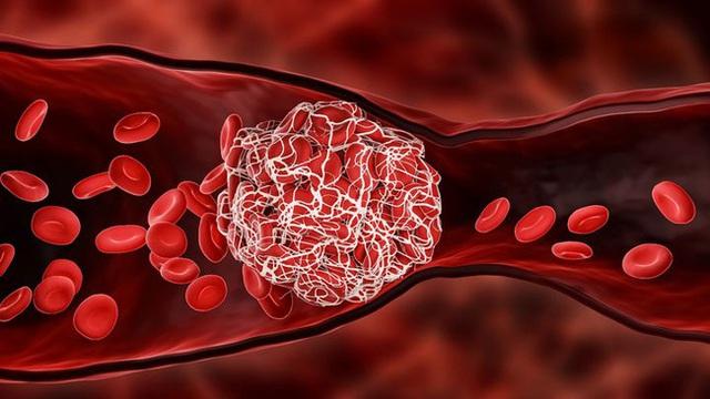 Thực hiện 2 động tác đơn giản để tránh xa những nguy hiểm chết người do cục máu đông gây ra - Ảnh 1.