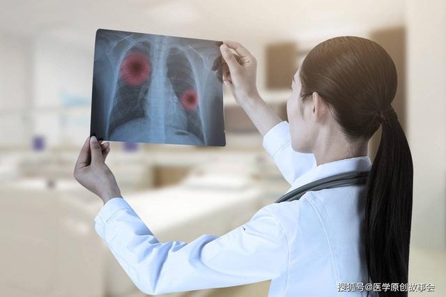 Bác sĩ trưởng khoa ung bướu tiết lộ những người miễn dịch ung thư thường có 7 đặc điểm này - Ảnh 3.