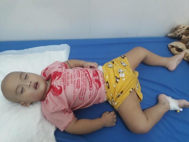 Xót xa hoàn cảnh bé trai 2 tuổi mờ hai mắt vì căn bệnh u não - Ảnh 3.