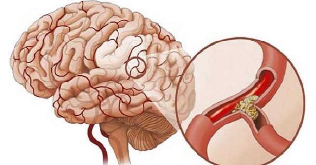 Phòng ngừa tai biến mạch máu não ở người tăng huyết áp - Ảnh 1.