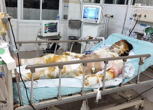 Xót xa mẹ nguy kịch vì bỏng nặng, hai con nhỏ không người chăm sóc phải gửi hàng xóm - Ảnh 2.