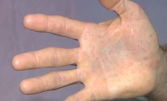 Hãi hùng cảnh người đàn ông bị 400 chiếc lông nhím đâm vào tay 3