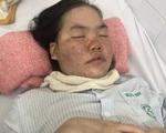 Tình cảnh khốn cùng của gia đình hai con nguy kịch khi mắc bệnh lupus ban đỏ