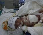 Bé trai 7 ngày tuổi bị thoát vị thành bụng cần gấp tiền điều trị
