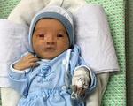 Bị nhiễm trùng máu, bé sơ sinh bị bỏ rơi dưới hố ga ở Hà Nội phải thở máy