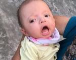 Xót xa bé gái hơn 4 tháng tuổi cần được hỗ trợ để sớm phẫu thuật tim