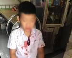 Nguyên nhân vụ phụ huynh hành hung học sinh lớp 1 nhập viện ở Hoà Bình