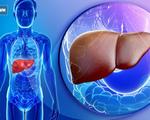 Đây mới là 6 món hủy hoại gan khiến gan của bạn