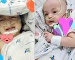 Cặp song sinh Trúc Nhi - Diệu Nhi chính thức cai máy thở, bắt đầu giỡn cười