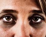 Xuất hiện quầng thâm ở mắt đừng chủ quan, rất có thể bạn đã mắc 1 trong 5 bệnh nguy hiểm này