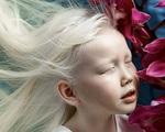 """9 em bé nổi tiếng khắp thế giới vì quá đỗi đặc biệt: Từ """"người sói"""", cô bé tóc hai màu đến """"công chúa tuyết"""" đẹp như bước ra từ cổ tích"""