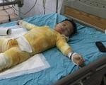 Ngã vào nồi canh, bé trai 3 tuổi bị bỏng nặng nguy kịch khi gia đình khó khăn